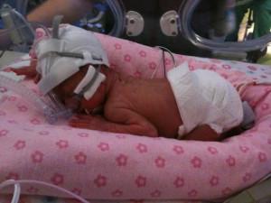 Lilliana (born at 24 weeks, 1lb 12 oz)